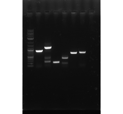 Photo of agarose gel showing cloned genes corresponding to the development of proprietary enzymes