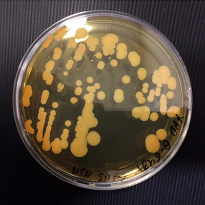 Petri dish with culture inside